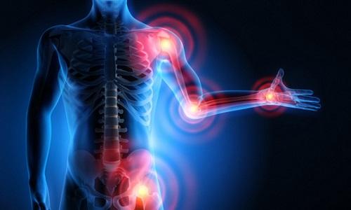 artrite-artrosi